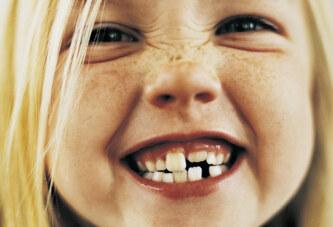 La dentizione del bambino