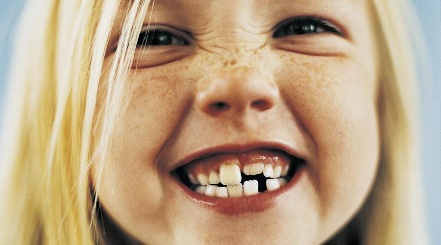 dentizione bambino