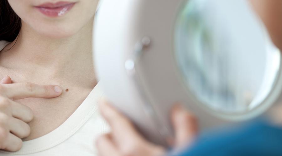 ABCDE, l'autodiagnosi dei nei