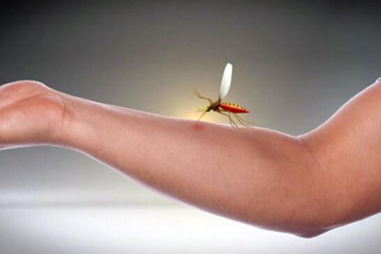 Migliori rimedi naturali contro le punture d'insetto